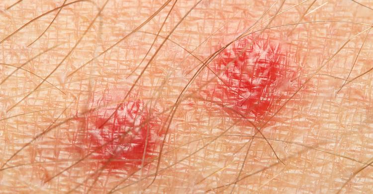 Las picaduras de garrapata provocan el enrojecimiento de la piel (iStock).